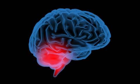 Πρόληψη εγκεφαλικού: 5 αλλαγές στη διατροφή για να μειώσετε τον κίνδυνο