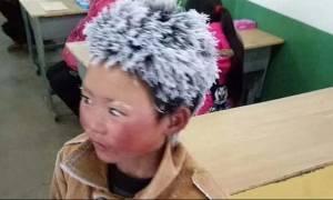 Τι απέγινε το «αγόρι με τα παγωμένα μαλλιά»