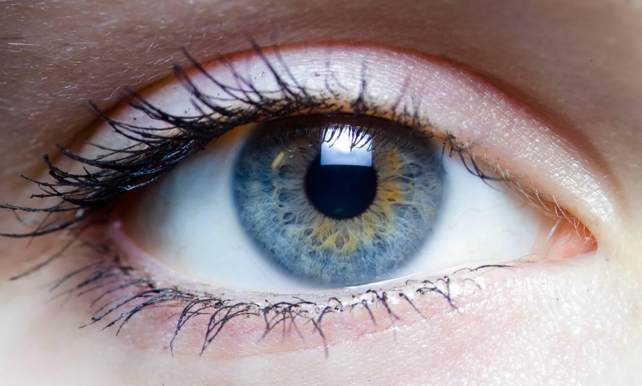 Είδε αυτές τις μαύρες κηλίδες στα μάτια της – Όταν έμαθε από τι προκλήθηκαν, έπαθε σοκ