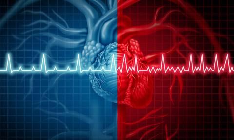 Κολπική μαρμαρυγή: Πόσο βάρος πρέπει να χάσετε για να απαλλαγείτε από την καρδιακή αρρυθμία