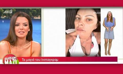 Άντζελα Δημητρίου: Αυτός είναι ο λόγος που κατέβασε τη φωτό της χωρίς φίλτρα!