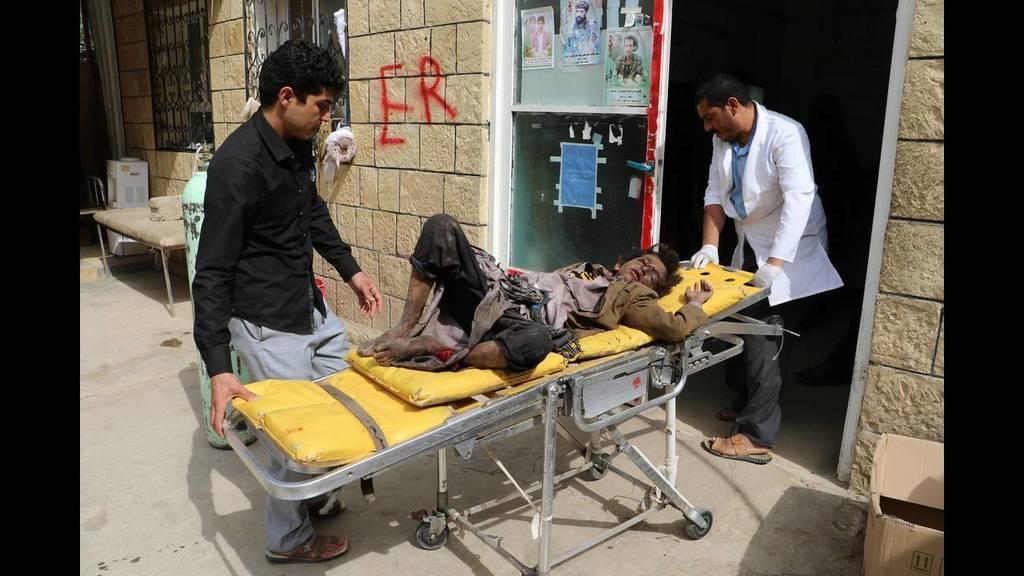 Μακελειό Υεμένη: Άμεση ανεξάρτητη έρευνα για τη σφαγή των παιδιών διέταξε ο ΟΗΕ (ΣΚΛΗΡΕΣ ΕΙΚΟΝΕΣ)