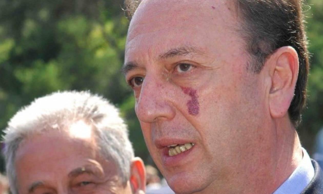 Πέθανε ο πρώην υπουργός Γιώργος Καλός
