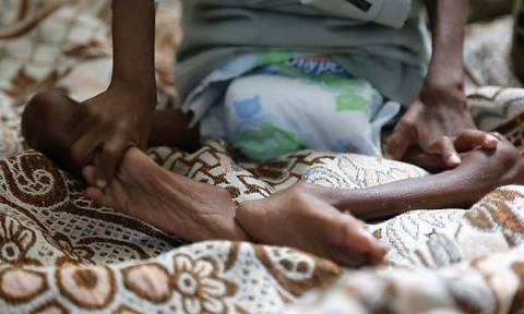 «Καμπανάκι» του ΟΗΕ για τον λιμό στην Υεμένη: Πλησιάζουμε ένα σημείο χωρίς επιστροφή