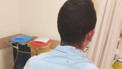 Αστυνομικοί με τραύματα σε κεφάλι και χέρια μετά από επίθεση Ρομά - Δείτε τις φωτογραφίες