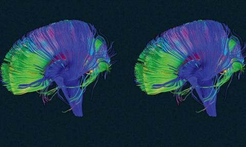 Το μυαλό έχει ένα κουμπί διαγραφής – Μάθε πώς να το χρησιμοποιείς