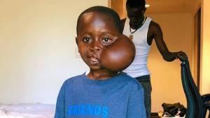 Ταξίδι ελπίδας με τραγικό τέλος: Δεν τα κατάφερε το αγοράκι από το Κονγκό με τον όγκο στο πρόσωπο