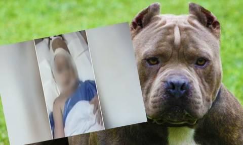 Επίθεση σκύλου σε κοριτσάκι 3 ετών: Η ζωοφιλία του χαβαλέ οδηγεί σε δράματα
