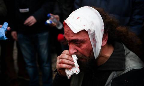 Συλλαλητήριο για τη Μακεδονία: Δολοφονική επίθεση σε φωτορεπόρτερ