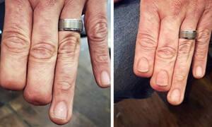 Δείτε πώς η δύναμη του τατουάζ έδωσε πίσω τα δάχτυλα σε έναν άνθρωπο!