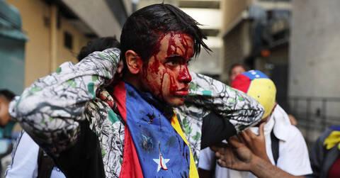 «Λουτρό» αίματος στη Βενεζουέλα: 35 νεκροί και 850 συλλήψεις σε μία μόλις εβδομάδα διαδηλώσεων