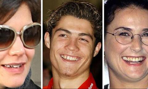 Διάσημοι του Hollywood με πραγματικά άσχημα δόντια (photos)