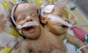 Η ελπίδα «έσβησε»: Πέθαναν τα σιαμαία βρέφη στην Υεμένη - Αδυνατούσαν να τα εγχειρίσουν λόγω πολέμου