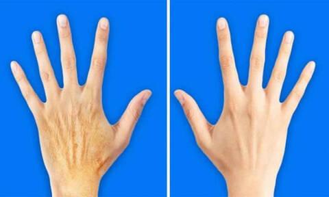 Πέντε μυστικά για να κάνετε τα χέρια 10 χρόνια νεώτερα!