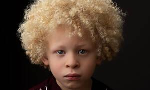 Πεντάχρονο αγόρι αλμπίνο κάνει καριέρα ως μοντέλο (pics)