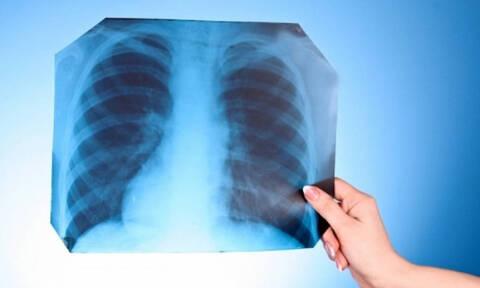 Χαλκίδα: Πήγε στο νοσοκομείο με φρικτούς πόνους - Έπαθε σοκ όταν είδε την ακτινογραφία (pics)