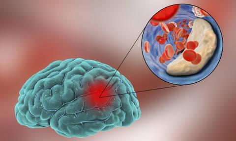 Το «παράδοξο της παχυσαρκίας» και ο ρόλος του στην επιβίωση από εγκεφαλικό