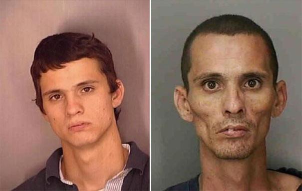 Σοκαριστικές φωτογραφίες ανθρώπων πριν και μετά την χρήση ναρκωτικών