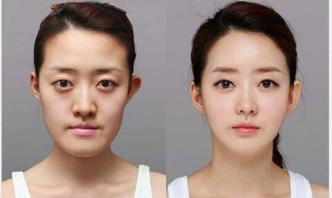 Απίστευτες φωτογραφίες: Πριν και μετά την πλαστική!