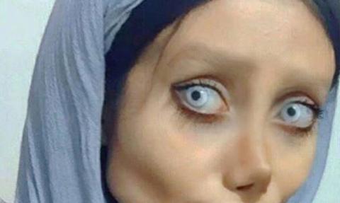 Εκανε 50 πλαστικές με σκοπό να μοιάσει στην Αντζελίνα Τζολί! Το αποτέλεσμα είναι τρομακτικό (photos)