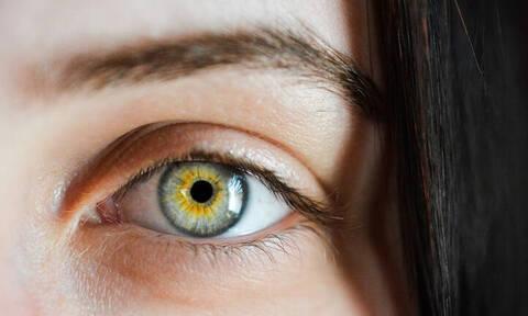 Πρωτοφανές ιατρικό περιστατικό: Μέλισσες ζούσαν μέσα στο μάτι 20χρονης!