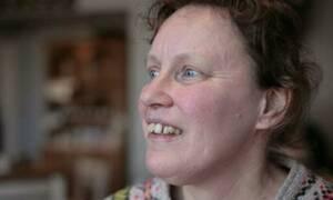 Λυπηρό: Η γυναίκα που δε μπορεί να αναγνωρίσει κανένα πρόσωπο! (video)