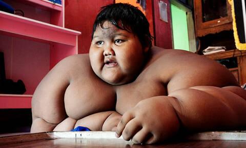 Τρομερό: Το πιο χοντρό παιδί στον κόσμο έχασε 100 κιλά! (pics)
