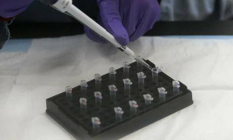 Αποκαλύφθηκε το «σκοτεινό» μυστικό: Ζευγάρι έκανε τεστ DNA - Το αποτέλεσμα τούς άλλαξε τη ζωή