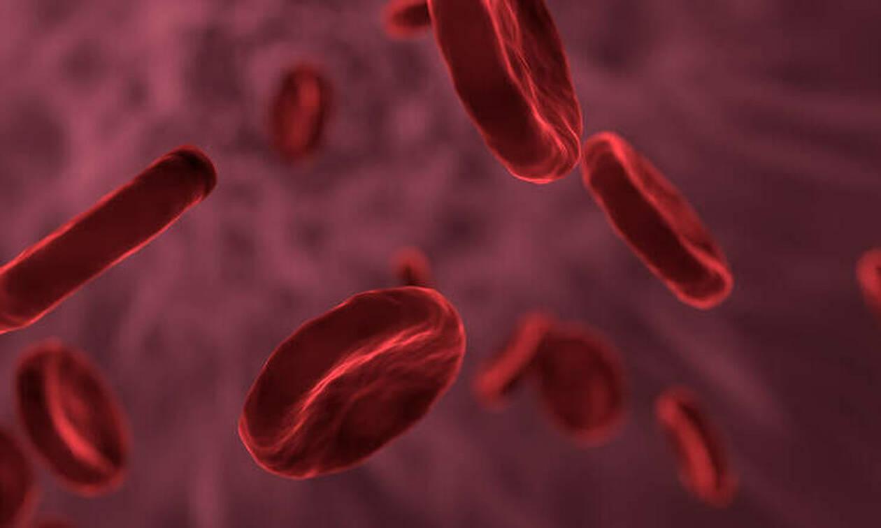 «Χρυσό αίμα»: Η σπανιότατη ομάδα αίματος που έχουν λιγότερα από 50 άτομα παγκοσμίως