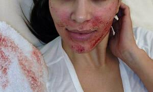 «Κόκκινος» συναγερμός στις ΗΠΑ για τη θεραπεία βαμπίρ – Δυο σοβαρά περιστατικά