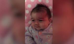 Γεννήθηκε με μια σπάνια ασθένεια στο πρόσωπο. Δείτε τι απαντά η μαμά της στα σχόλια των ξένων (vid)