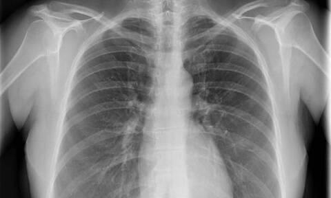 ΣΟΚ: Άφωνοι οι γιατροί με αυτό που είδαν στην ακτινογραφία (pics)