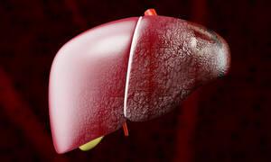 Διαβήτης τύπου 2: Πόσο αυξάνει τον κίνδυνο κίρρωσης και καρκίνου του ήπατος