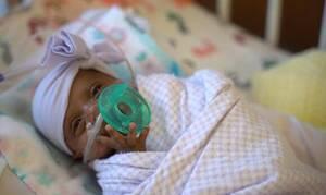 Συγκίνηση! Σύγχρονο «θαύμα» - Κοριτσάκι γεννήθηκε 245 γραμμάρια και κατάφερε να ζήσει (vid)