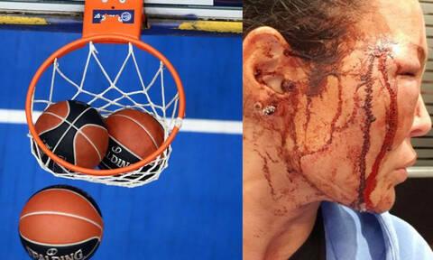 Καταγγελία-σοκ από τη σύντροφο πρώην μπασκετμπολίστα – Σκληρές εικόνες (photos)