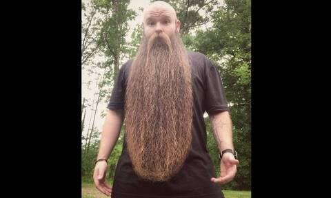 Απίστευτο! 32χρονος έχει να ξυριστεί πέντε χρόνια (pics)