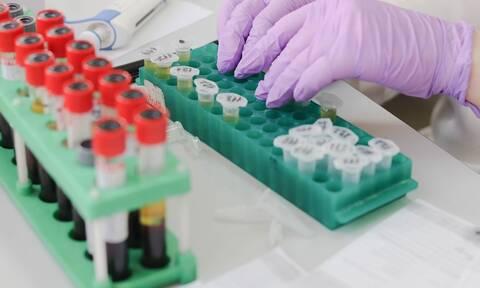 Διαγνωστικά κέντρα: Αποχή διαρκείας από 10/6 – Κινητοποιήσεις και από τους φυσικοθεραπευτές