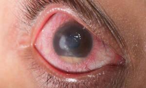 Γλαύκωμα: Τα στοιχεία που αντιμετωπίζουν τα συμπτώματα (εικόνες)
