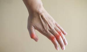 Ρευματοειδής αρθρίτιδα: Το μπαχαρικό που προκαλεί υποχώρηση των συμπτωμάτων