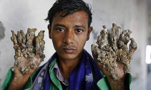 Ο «άνθρωπος – δέντρο» εκλιπαρεί τους γιατρούς να τον ακρωτηριάσουν για να λυτρωθεί απ' τον πόνο