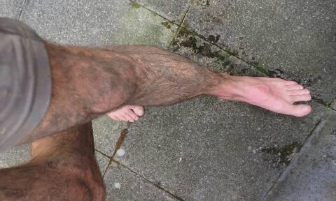 Ο πόνος στο πόδι δεν ήταν αθώος: «Πάγωσαν» οι γιατροί όταν ανακάλυψαν τι ήταν (pics)
