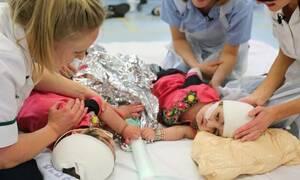 Ιατρικός μαραθώνιος έδωσε ζωή σε δύο σιαμαία κορίτσια