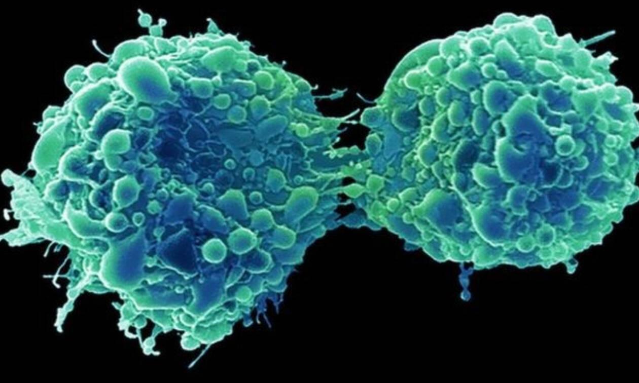 Καρκίνος της ουροδόχου κύστης: Πώς σχετίζεται με το κοινό κρυολόγημα