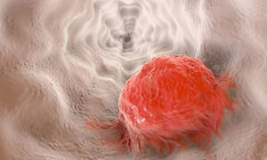 Ανθοκυανίνες: Η αντικαρκινική τους δράση και πού θα τις βρείτε