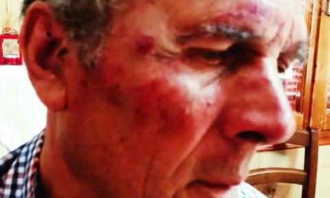 Θρίλερ στη Σάμο: Τούρκοι ξυλοκόπησαν ηλικιωμένο Έλληνα επειδή άκουγε εκκλησιαστικούς ύμνους