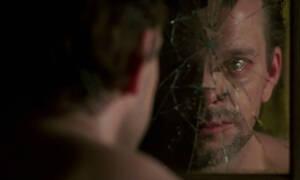 O πασίγνωστος ηθοποιός που κατέστρεψε το πρόσωπό του