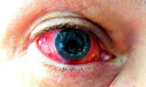 Κόκκινα μάτια: 8 αιτίες σε εικόνες