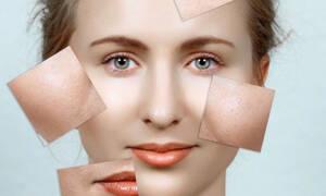 Πανάδες και δυσχρωμίες στο δέρμα μετά τις διακοπές: Πως θα τις εξαφανίσετε