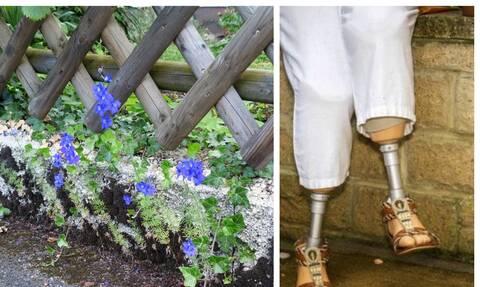Εφιάλτης: Την τσίμπησε έντομο στον κήπο και της ακρωτηρίασαν τα πόδια (pics)
