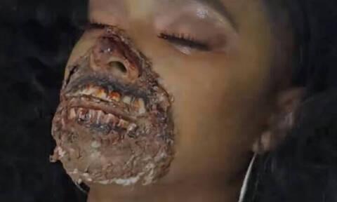 Τον απόλυτο πανικό έσπειρε γυναίκα «ζόμπι» σε νοσοκομείο